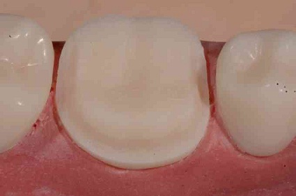 CEREC Full Crown