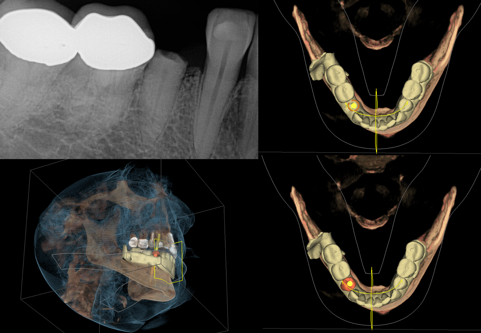 "This non restorable #29 will be extracted and replaced with an implant and screw retained Emax abutment crown. Optical data from CEREC was integrated with Galielos and the screw access predicted with the yellow ""pole"" known as the pilot drill path."