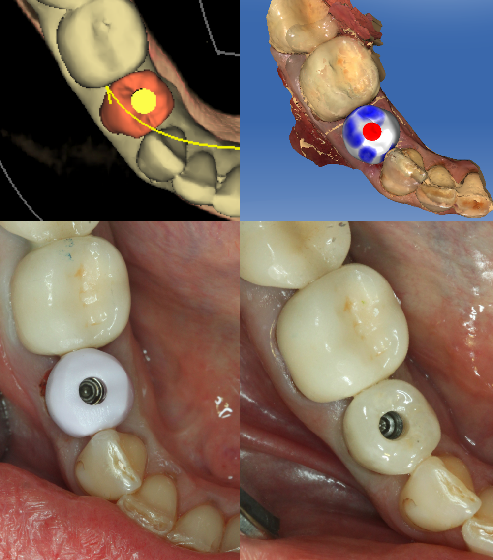 Fig. 6: After milling, the Emax crown was tried on the implant with the Ti-Base and the occlusion adjusted.  It was then sintered, stained and glazed, and then cemented to the Ti-Base using Multi-Link Abutment Resin Cement from Ivoclar.