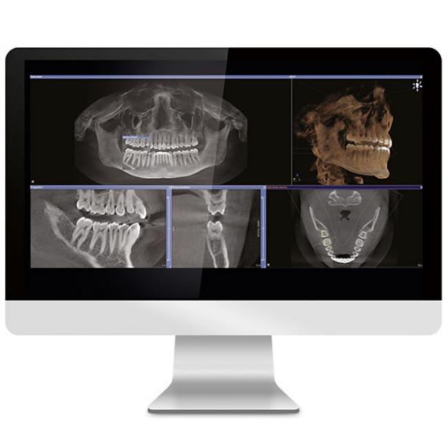 example of digital imaging