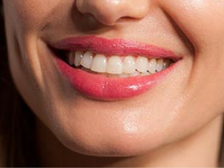 angeline jolie smile closeup