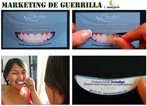 creative invisalign punch out business card