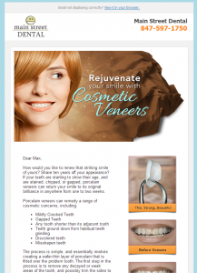 Cosmetic Veneers - RevenueWell
