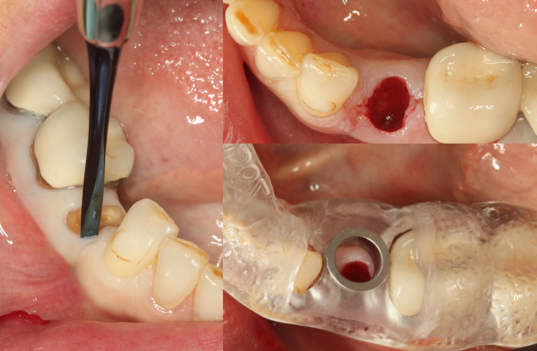 The root tip was removed atraumatically using periotomes and an Optiguide which was ordered from SICAT, Sirona's guide lab, was seated.