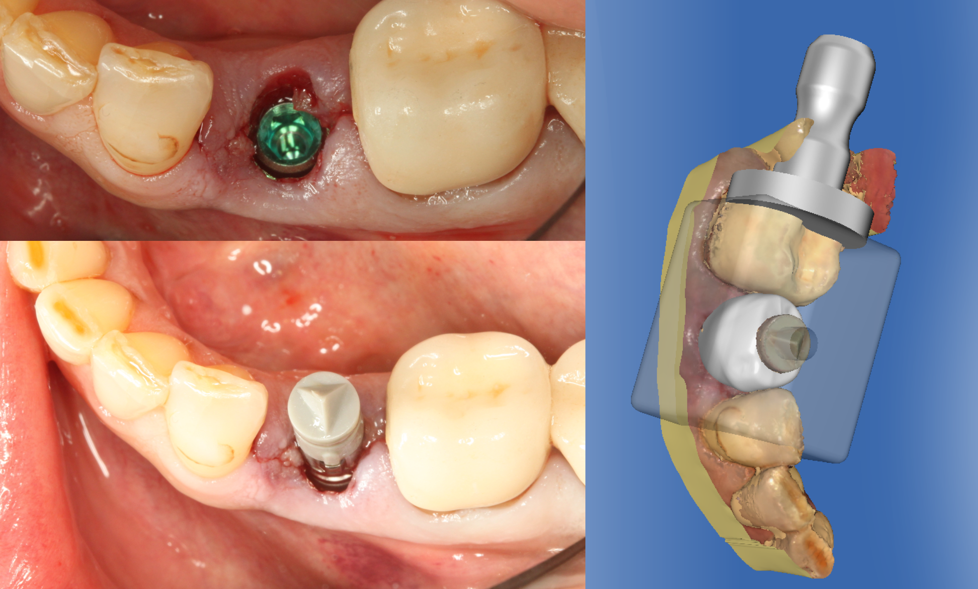 Fig. 5: A scan post was placed in the Implant Direct Legacy 3 Implant (Sirona TSV 3.5mm) and a gray scan cap was placed.  Note the notch on the buccal corresponds to the most mid buccal hex.  A screw retained Emax crown was designed in milled utilizing the Omnicam and CEREC 4.2