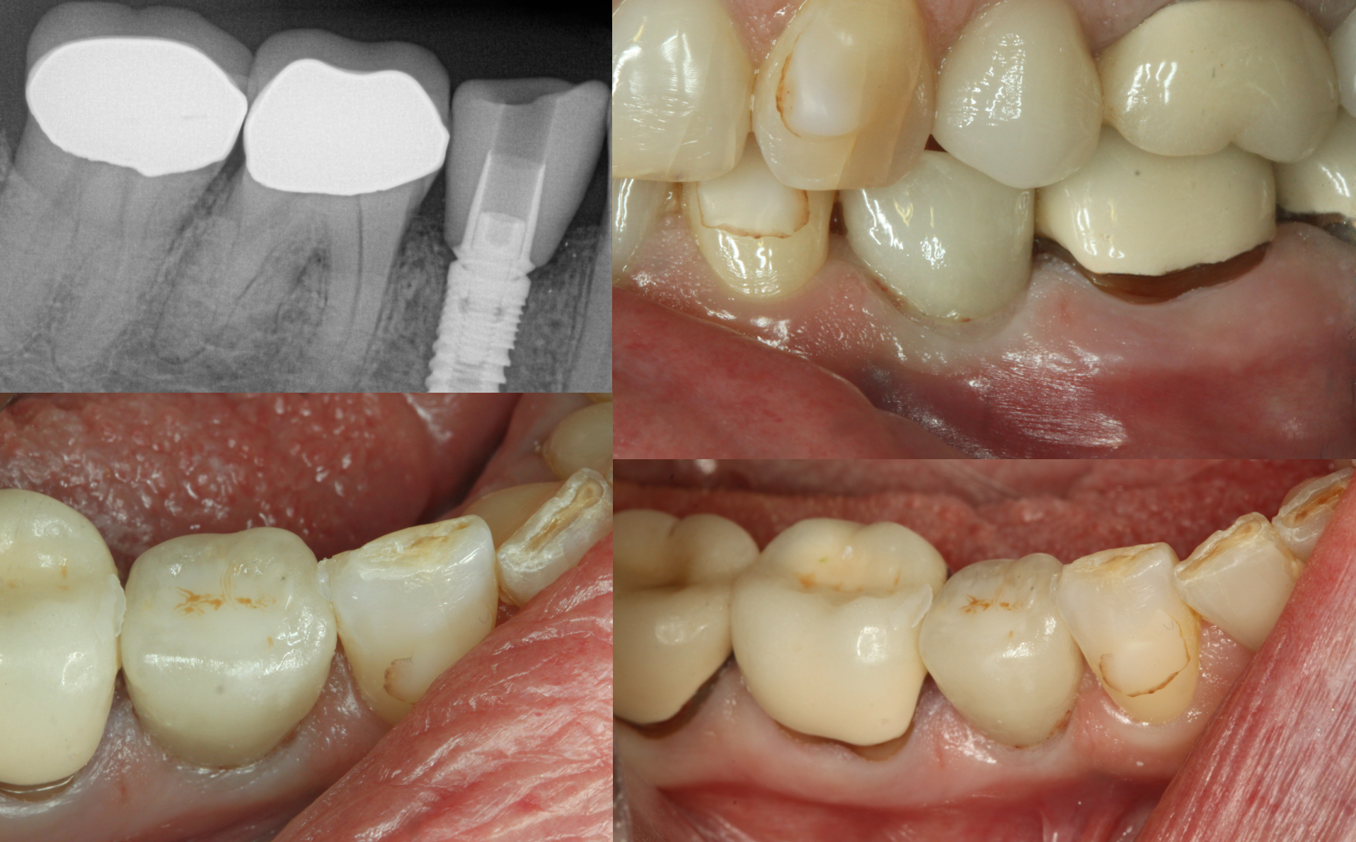 Fig. 7: The final restoration was torqued down to 30 Ncm and an endodontic sponge was placed over the screw hex.  Opaque flowable and paste composites were placed after the bonding agent to seal the access and ochre composite stain was used to characterize.