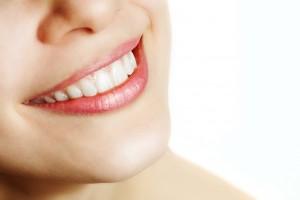 smile whitening marketing materials