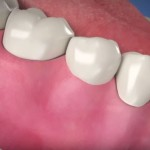 3 educational videos for dental implant patients