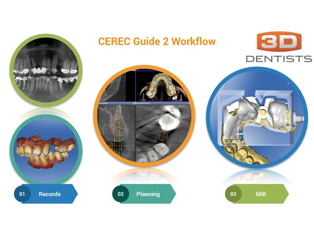 What is a CEREC Guide 2 Workflow?