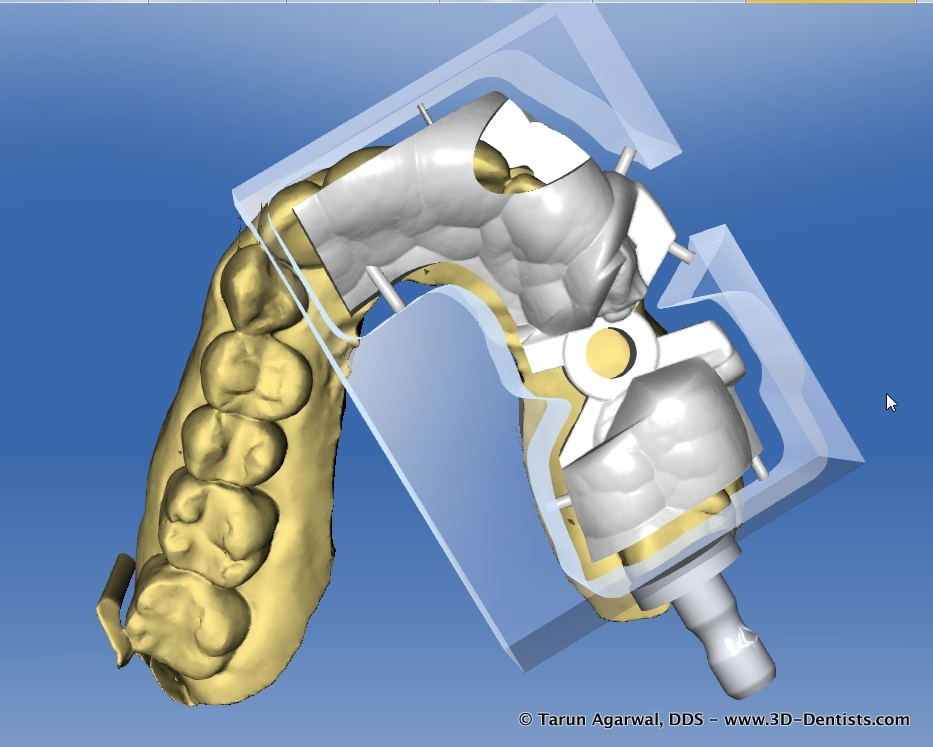 CEREC Guide 2