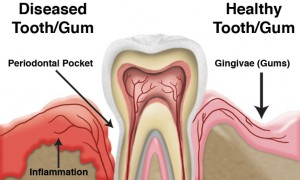 normal tooth and gum compared to tooth and gum with gum disease