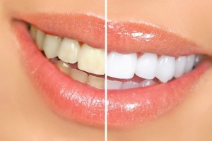 before and after smile cleaning
