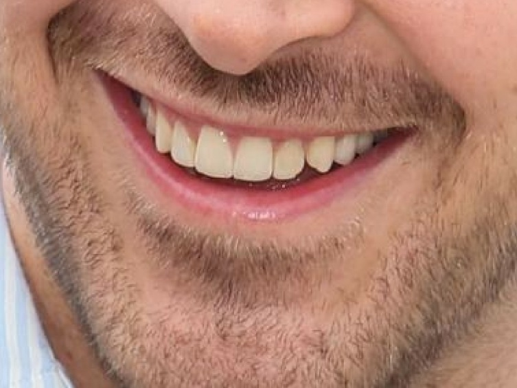 ryan gosling smile closeup