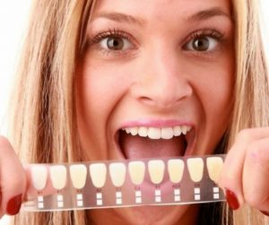 excited female holding up a tooth shade guide